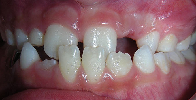 Child's teeth, left side view before orthodontic treatment for an underbite (Negative overjet)