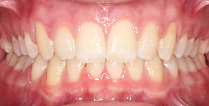 After treatment which involved twin block appliance followed by full fixed appliances (braces)